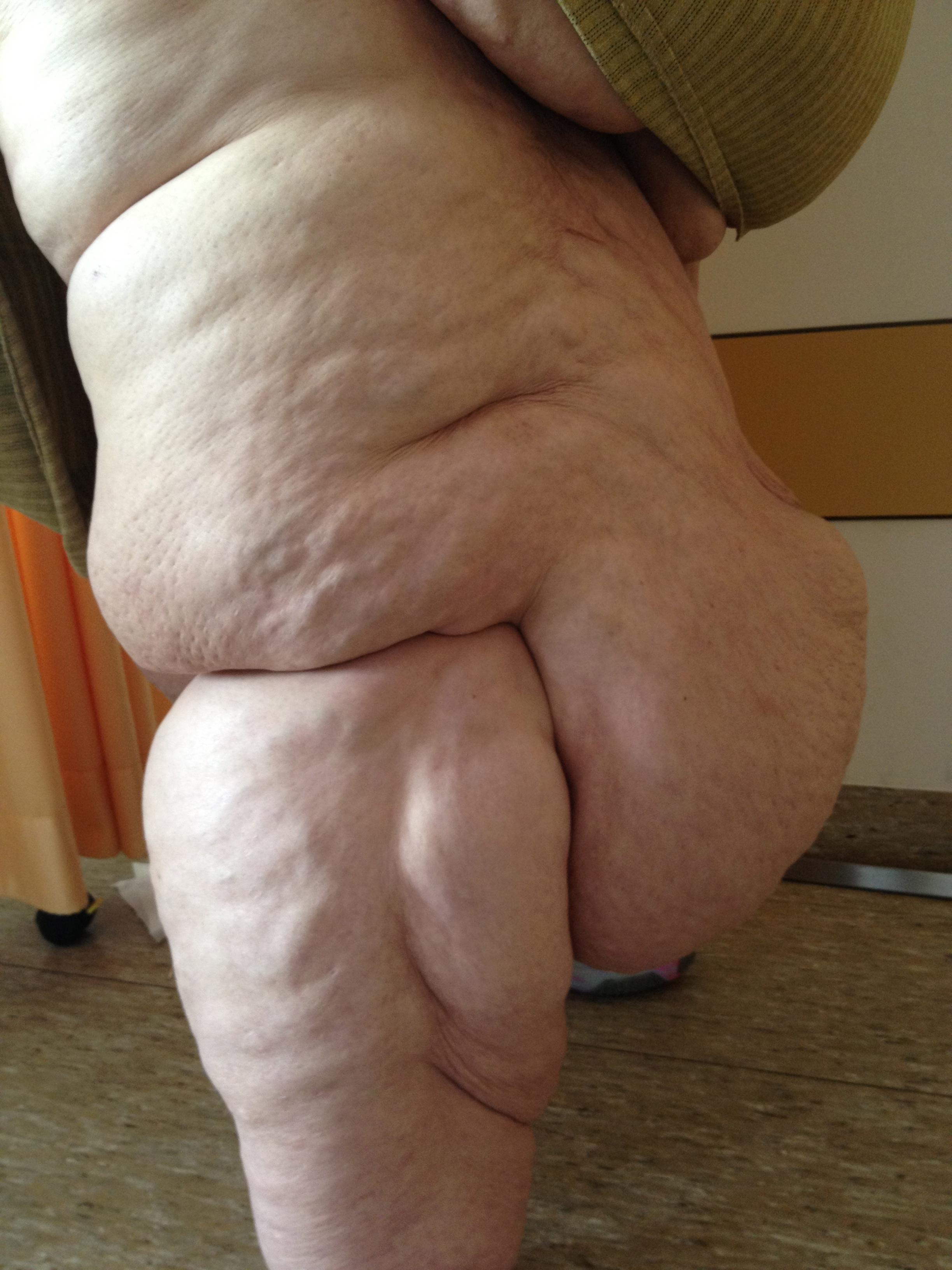 Legs Up The Wall Lipedema